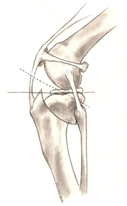eturistiside-leikkaus